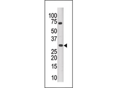 PIM3 Antibody (C-term)