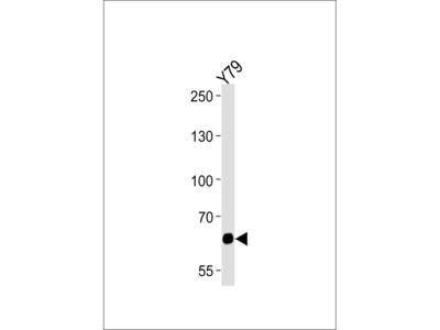 PPEF2 Antibody (Center)