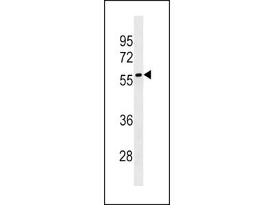 LRRC69 Antibody (Center)