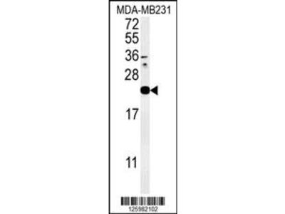 IL1F6 Antibody (Center)