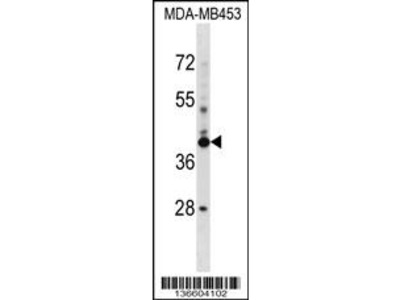 SRRD Antibody (Center)