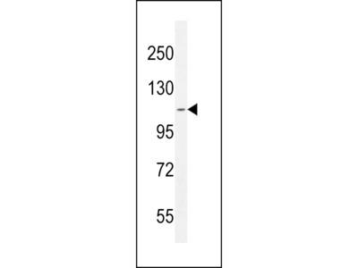 AT8B2 Antibody (N-term)