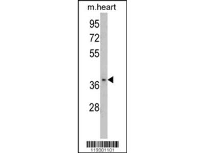 FBP2 Antibody (C-term)