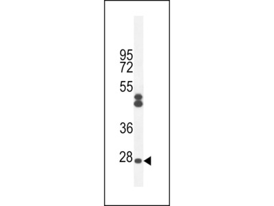 CF062 Antibody (Center)