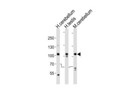 SKOR2 Antibody (C-term)