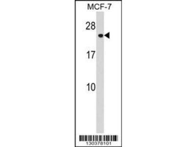 CHMP1A Antibody (N-term)
