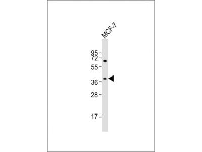 OR11H4 Antibody (C-term)