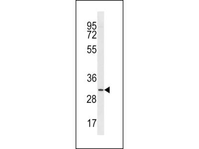 TMIGD2 Antibody (Center)