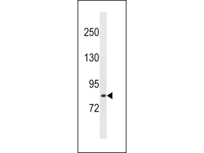 LRCH1 Antibody (Center)