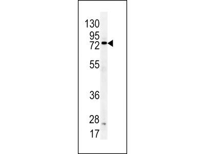 DDX53 Antibody (C-term)