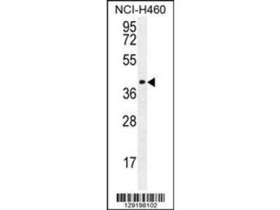 CCDC54 Antibody (Center)