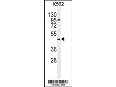 CPA3 Antibody (Center)