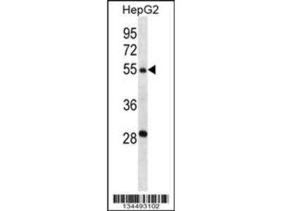 TMPRSS13 Antibody (C-term)