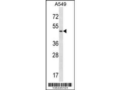 UTS2R Antibody (Center)