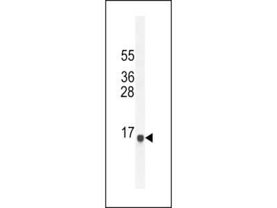 SPAG11A Antibody (N-term)