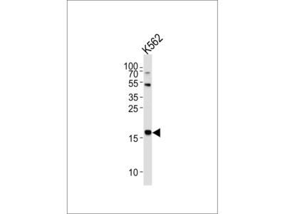 NAT14 Antibody (N-term)
