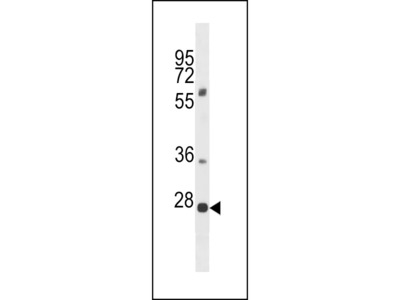 PLEKHF1 Antibody (N-term)