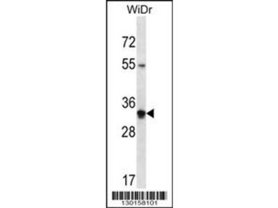 OR2W5 Antibody (C-term)