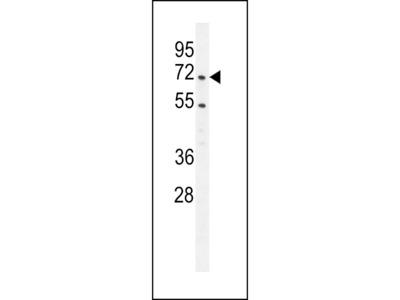 PRMT4 Antibody (Center)