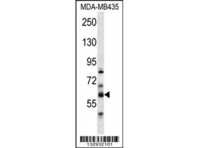 PTDSS2 Antibody (N-term)