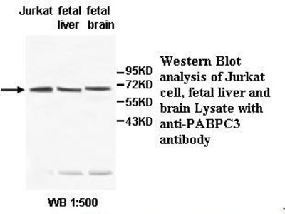 Anti-PABPC3 Antibody