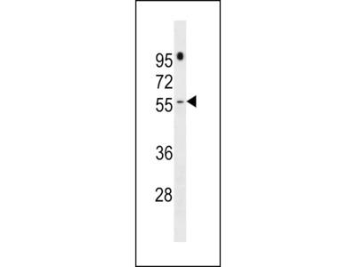 PRAMEF16 Antibody (C-term)