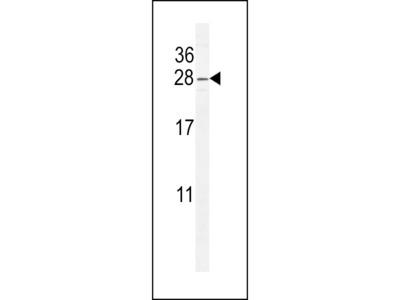 ARL8 Antibody (C-term)