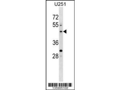 PLEKHO2 Antibody (N-term)