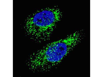 LC3 Antibody (APG8A) (D106)