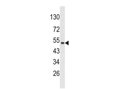 CKIP-1 Antibody (N-term)