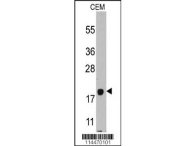 PBP (PPBP) Antibody (C-term)