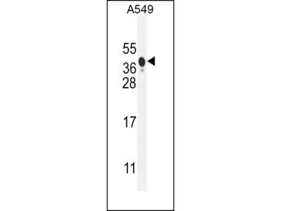 NIX Antibody (Center)