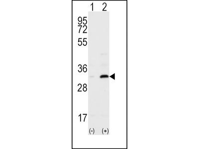 CD82 (ST6) Antibody (C-term)