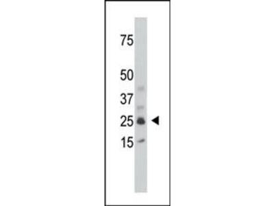 SULT1C1 Antibody (Center)