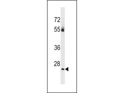 TBC1D26 Antibody (C-term)