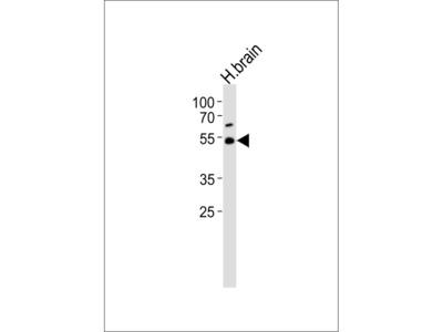 TRIM43B Antibody (Center)
