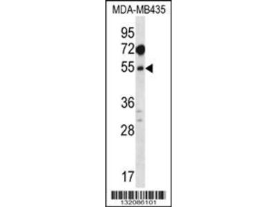 MAT1A Antibody (N-term)
