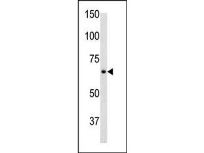 GFAP Antibody (C-term)