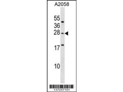 EPDR1 Antibody (Center)