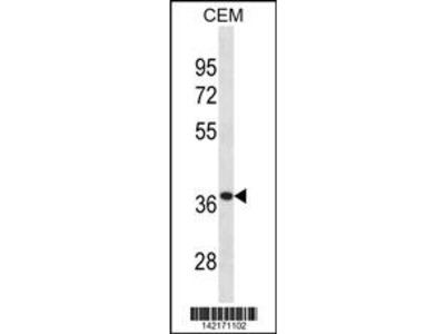 TTPA Antibody (Center)