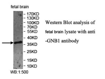GNB1 Antibody