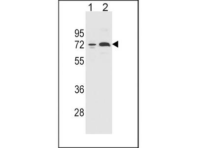 CYP2B6 Antibody (Center)