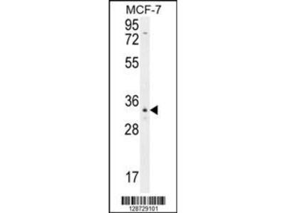 OR6C4 Antibody (C-term)