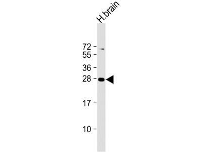 PLD6 Antibody (Center)