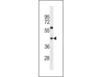 TAS2R3 Antibody (C-term)