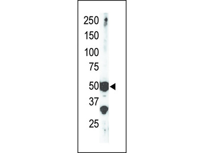 SET7 (SET9) Antibody (Center)