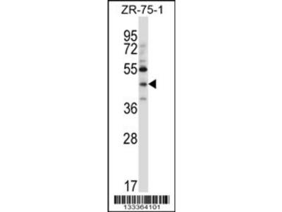 NEUROD6 Antibody (N-term)