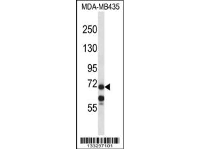 MID1 Antibody (C-term)