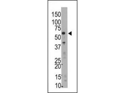 SMYD5 (RAI15) Antibody (C-term)