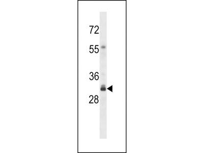 OR4F16 Antibody (N-term)
